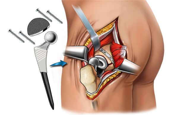 Hip Replacement Surgery, An Answer To Your Pain Problem